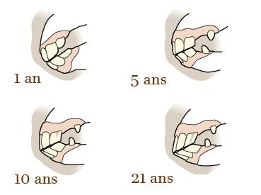 Evolution des dents du cheval